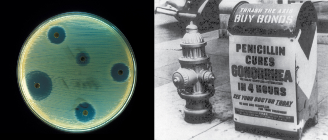 "The left side of this image is an old black and white photo of a mailbox plastered with an advertisement reading ""Penicillin cures gonorrhea in four hours. See your doctor today."" The right side of the image shows a petri dish streaked with bacteria. Bacteria grow everywhere on the plate except where discs containing antibiotic have been placed. These areas are completely devoid of bacterial growth"