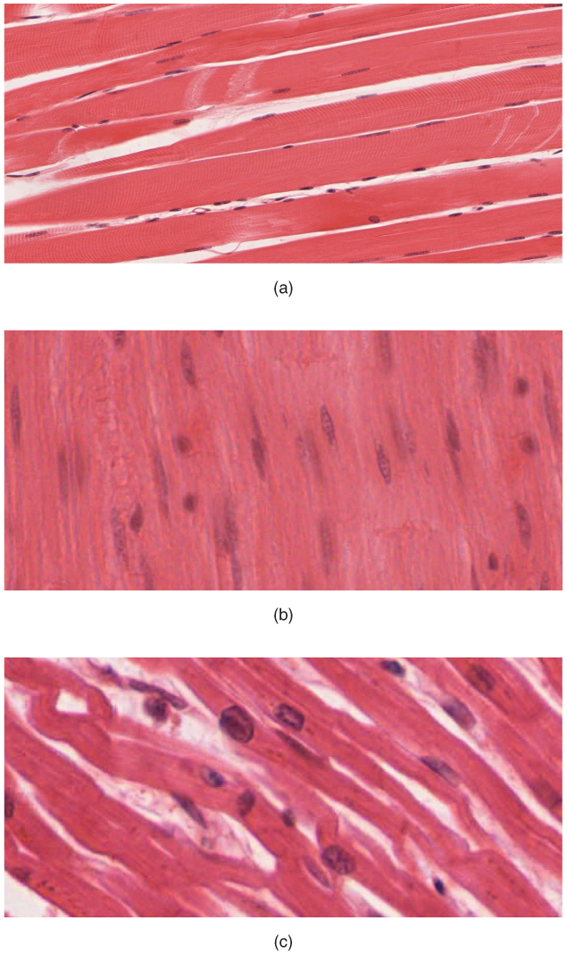 Why does skeletal muscle look striated? By OpenStax | QuizOver.com