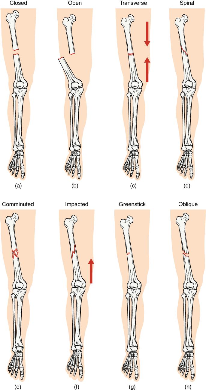 Origin Anatomy Definition Choice Image - human body anatomy