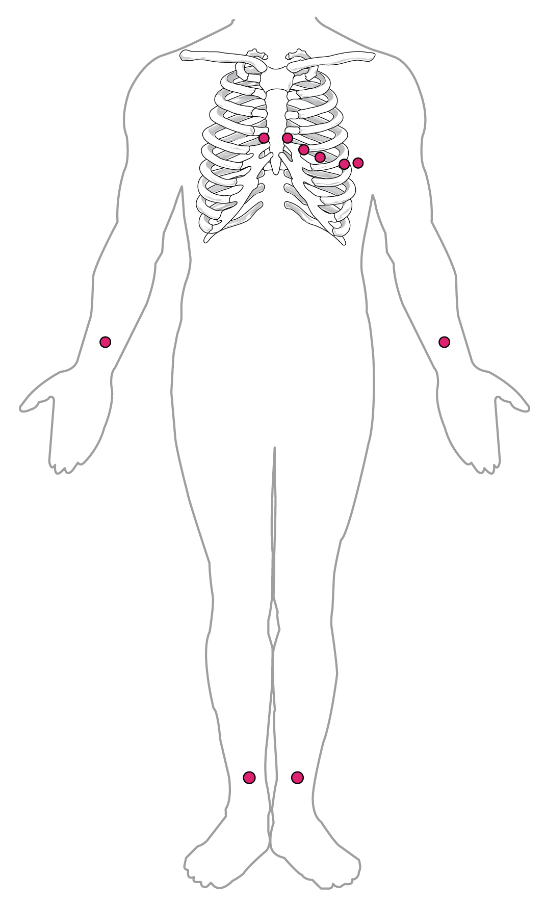 Electrocardiogram Cardiac Muscle And Electrical Activity By Diagram Electrocar Diogram This Shows The Points Where Electrodes Are Placed On Body For An Ecg
