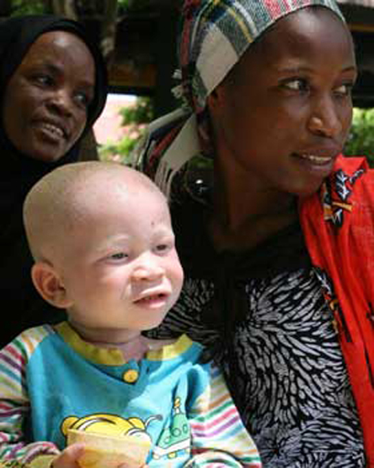 Photo shows a mother with an albino child.