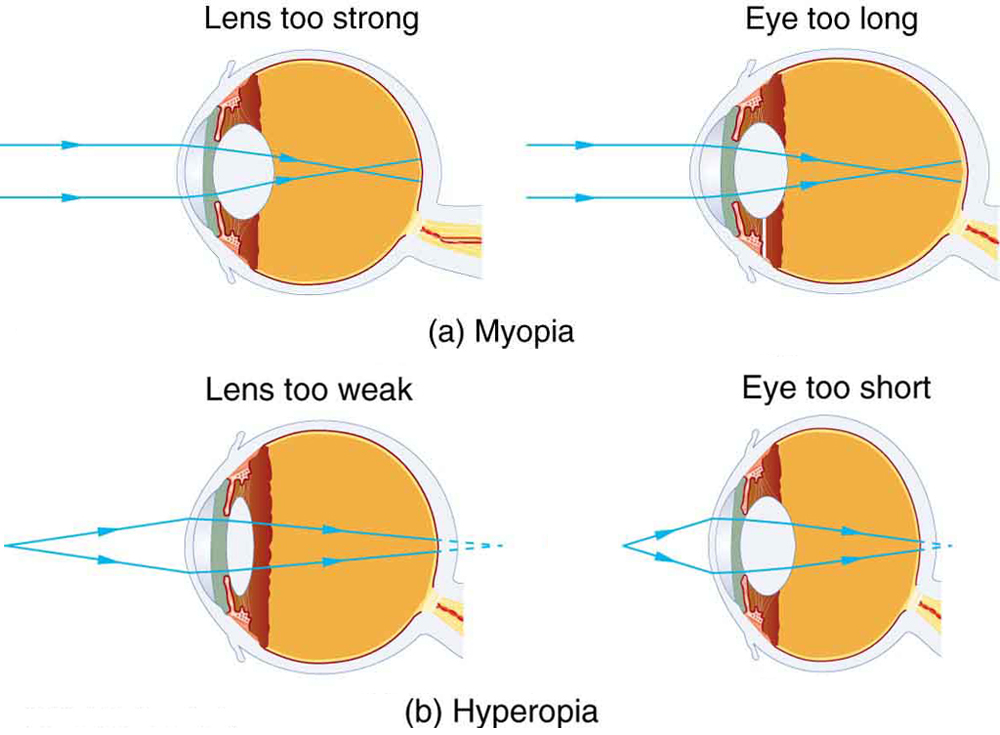 Part a shows two figures of cross-sectional area of eye depicting myopia. In both the figures, parallel rays coming from an object placed at infinity are converging in front of the retina. Figure on the left shows the lens of the eye too strong and figure on the right illustrates the shape of the eye too long. Part b shows two figures of cross-sectional area of eye depicting hyperopia. In both the figures, rays coming from a close object are shown which are converging at the back of the retina. Figure on the left shows the lens of the eye too weak and figure on the right illustrates the shape of the eye too short.