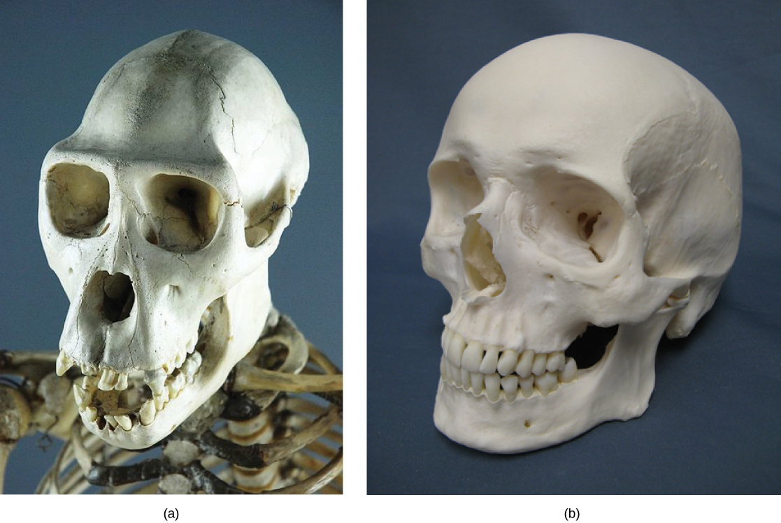 Photo A is of a chimpanzee skull. There is a prominent ridged brow, the eye and nose area is quite flat, and the maxilla and mandible (the jaw) protrude. Photo B is of a human skull. The cranium is proportionately larger than the chimpanzee, the brow is smooth, the nose and cheekbones are more prominent and the mandible and maxilla protrude only slightly.