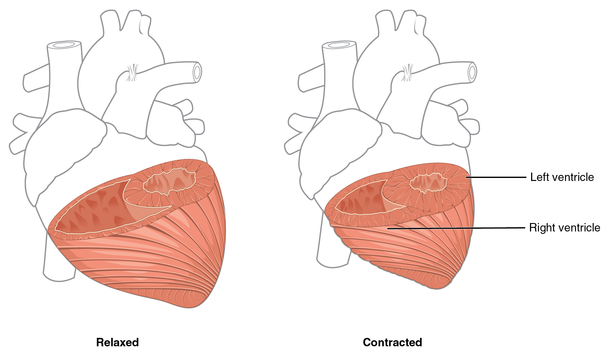 Right ventricle heart anatomy by openstax page 479 quizover differences in ventricular muscle thickness ccuart Choice Image