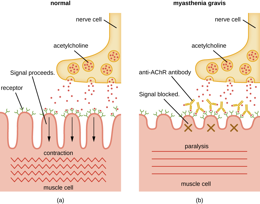 a) Diagram of a normal nerve cell releasing acetylcholine which binds to receptors on the muscle cell. This signal is processed and the muscle cell contracts. B) Diagram of myasthenia gravis. The nerve cell releases acetylcholine but anti-AChR antibodies bind to the acetylcholine so it cannot bind to the receptors on the muscle cells. Because the signal is blocked the muscle is paralyzed and does not contract.