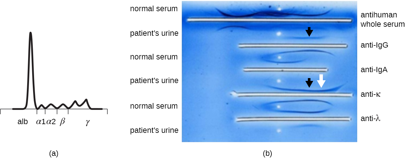 a) A graph showing a large peak at alb and smaller peaks at alpha1, alpha2, beta, and gamma.  B) A photograph showing various white lines on a blue background. The top line is labeled anti-human whole serum, the next is anti-IgG, the next is anti-IgA, the next is anti-K and the next is anti-lambda. Each of these is near a band from both the normal and patient urine samples. Black arrows point to the patient's sample next to anti-IgG and anti-k. A white arrow points to the band from the patient near anti-K.
