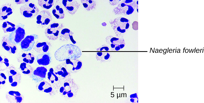 human african trypanosomiasis a critical review This study reports on the importance of recording data related  stage-2 human  african trypanosomiasis: a critical appraisal of.