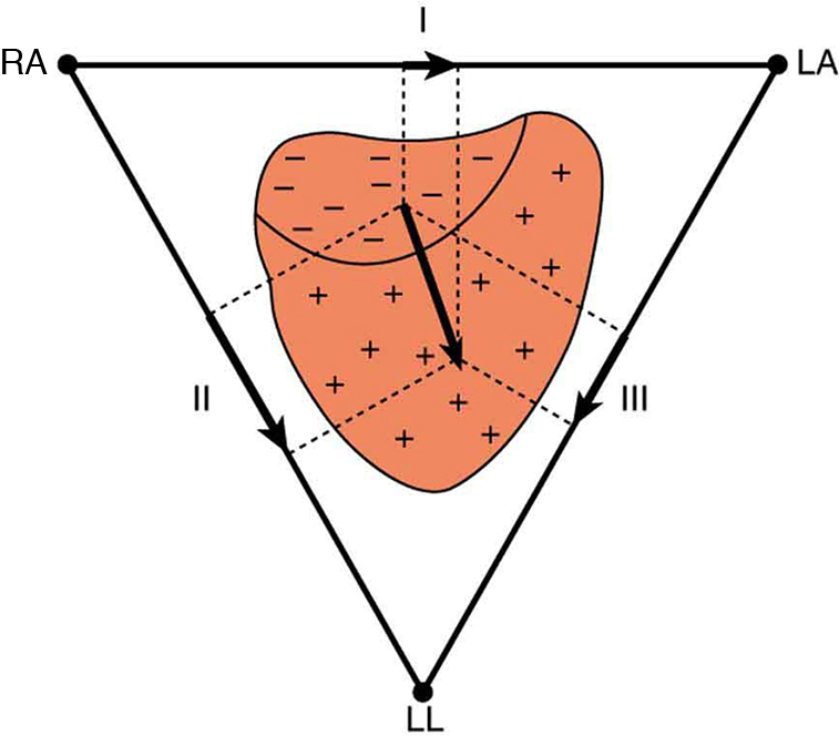 The figure shows that the charge distribution on the outer surface of the heart changes from positive to negative during depolarization. This wave of depolarization, spreading from the upper right toward the lower left of the heart, is represented by a vector pointing in the direction of the wave. The components of this vector are measured by placing electrodes on the patient's chest. The figure shows three electrodes, labeled R A, L A, and L L, placed to form a triangle around the heart. The electrode R A is close to the right atrium, L A is close to the left atrium, and L L is just below the heart. R A and L A form a pair called lead one, R A and L L form a second pair called lead two, and L A and L L form a third pair called lead three. Each pair of electrodes measures a component of the depolarization vector.