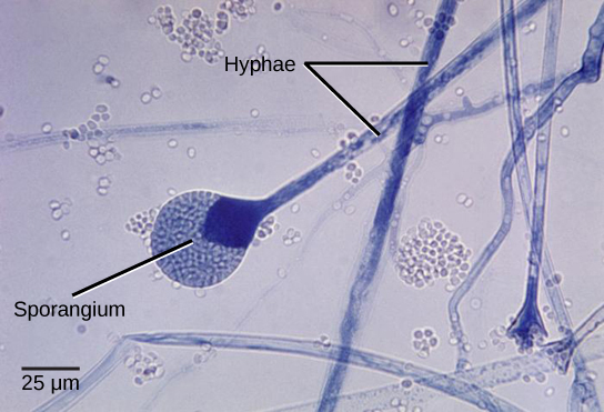 Micrograph shows several long, thread-like hyphae stained blue. One hypha has a round sporangium, about 35 microns in diameter, at the tip. The sporangium is dark blue at the neck, and grainy white–blue elsewhere. Spores that have already been released appear as small white ovals.