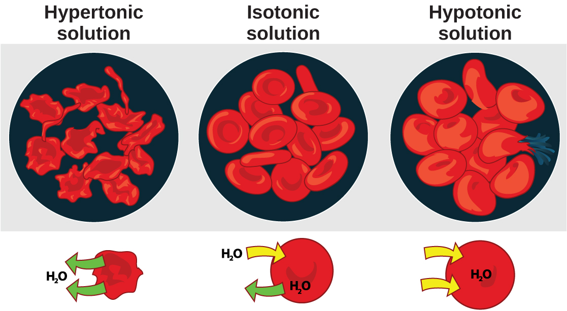 The left part of this illustration shows shriveled red blood cells bathed in a hypertonic solution. The middle part shows healthy red blood cells bathed in an isotonic solution, and the right part shows bloated red blood cells bathed in a hypotonic solution. One of the bloated cells in the hypotonic solution bursts.
