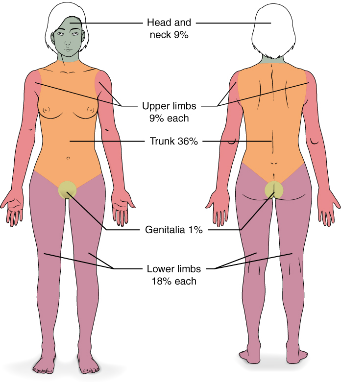 This diagram depicts the percentage of the total body area burned when a victim suffers complete burns to regions of the body. Complete burning of the face, head and neck account for 19% of the total body area. Burning of the chest, abdomen and entire back above the waist accounts for 36% of the total body area. Anterior and posterior surfaces of the arms and hands account for 18% of the total body area (9% for each arm). The anterior and posterior surface of both legs, along with the buttocks, accounts for 36% of the total body area (18% for each leg). Finally, the anterior and posterior surfaces of the genitalia account for 1% of the total body area.