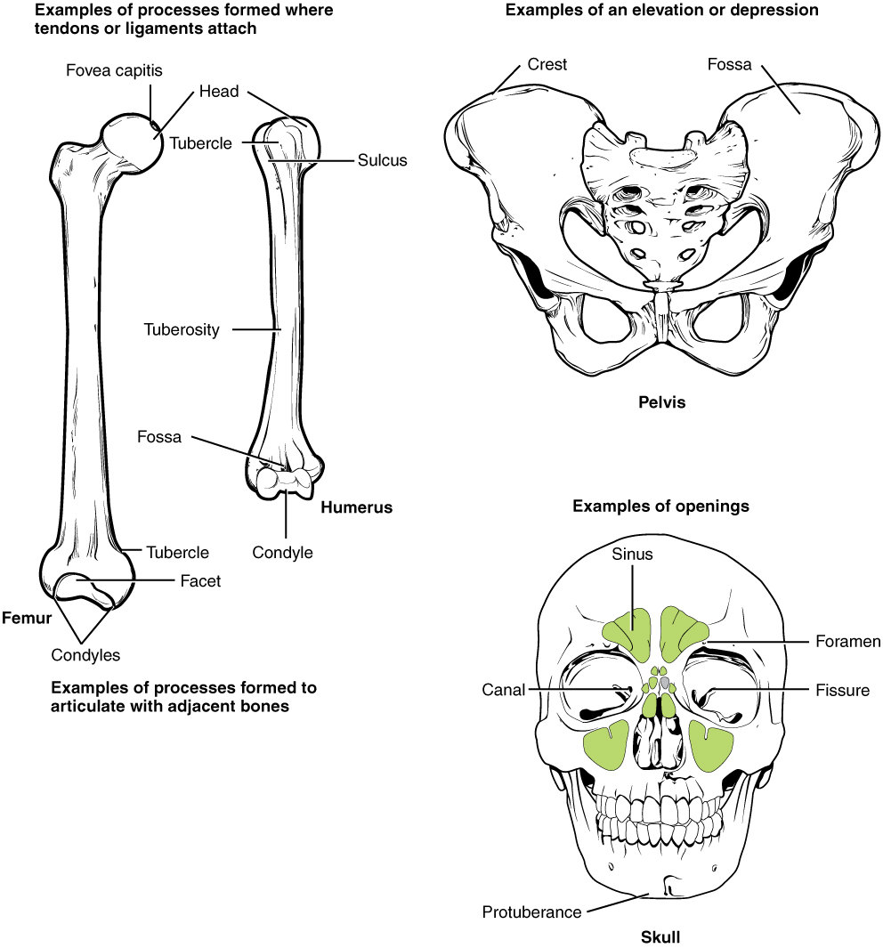 "This illustration contains three diagrams. The left diagram is titled examples of processes formed where tendons or ligaments attach. The image shows an anterior view of the femur and an anterior view of the humerus. For the femur, the distal epiphysis contains a smaller lateral bulge and a larger medial bulge. These are examples of condyles. The inner halves of the two condyles as well as the groove between them compose a facet. An oval-shaped ridge on the medial surface of the distal metaphysis is an example of a tubercle. On the proximal epiphysis of the femur, the large knob that attaches to the hip socket is an example of a head. The tip of the head contains a small depression, an example of a fovea called the fovea capitis. On the humerus, the distal epiphysis contains a central depression that is an example of a fossa. Two condyles are located on the right and left sides of the fossa. The diaphysis of the humerus contains a small ridge running up the shaft that is an example of a tuberosity. The proximal epiphysis of the humerus contains a lateral and a medial bulge that are both examples of tubercles. Finally, a narrow groove runs from the center of the proximal metaphysis in between the medial and lateral condyles. This is an example of a sulcus. The middle image is entitled elevations or depressions. It shows an anterior view of the hip bones. The hip bones are shaped like two wings that join at the bottom. The crest along the upper edge of each hip bones, at the tip of each ""wing"" is an example of an elevation. A depression on the inner surface of both hip bones just under the crest is called out as a fossa. The right image is entitled examples of openings and shows an anterior view of the skull. The bone underlying the chin is an example of a protuberance while two small holes above each eye socket are examples of foramen. Five green sinuses surround the nose cavity are colored green. These are sinuses because they are hollowed out cavities within the skull bones. A small channel leads into the corner of each eye where the tear ducts occur. These two channels are both examples of a canal. Finally, the bones that form the posterior wall of the eye socket have a small crack running diagonally away from the nose. These are examples of fissures."
