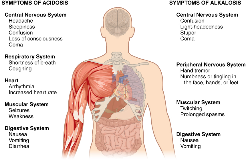 This figure points out the symptoms of acidosis and alkalosis on a silhouette of a human torso. The effects of acidosis on the central nervous system include headache, sleepiness, confusion, loss of consciousness and coma. The effects of acidosis are given on the left side of the diagram. The effects of acidosis on the respiratory system include shortness of breath and coughing. The effects of acidosis on the heart include arrhythmia and increased heart rate. The effects of acidosis on the muscular system include seizures and weakness. The effects of acidosis on the digestive system include nausea, vomiting and diarrhea. The right side of the diagram describes the symptoms of alkalosis. The effects of alkalosis on the central nervous system include confusion, light-headedness, stupor, and coma. The effects of alkalosis on the peripheral nervous system include hand tremor and numbness or tingling in the face, hands, and feet. The effects of alkalosis on the muscular system include twitching and prolonged spasms.  The effects of alkalosis on the digestive system include nausea and vomiting.