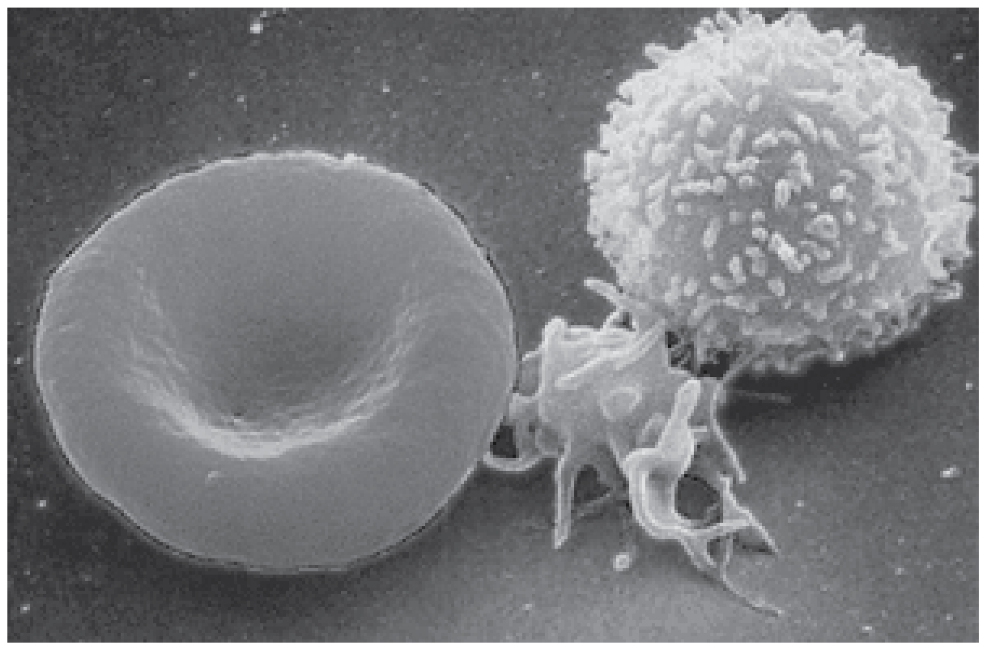 This photo shows a red blood cell and a white blood cell.