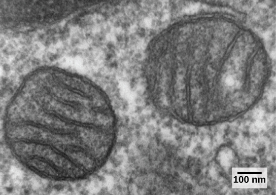 The transmission electron micrograph shows two round, membrane-bound organelles inside a cell. The organelles are about 400 nm across and have membranes running through the middle of them.