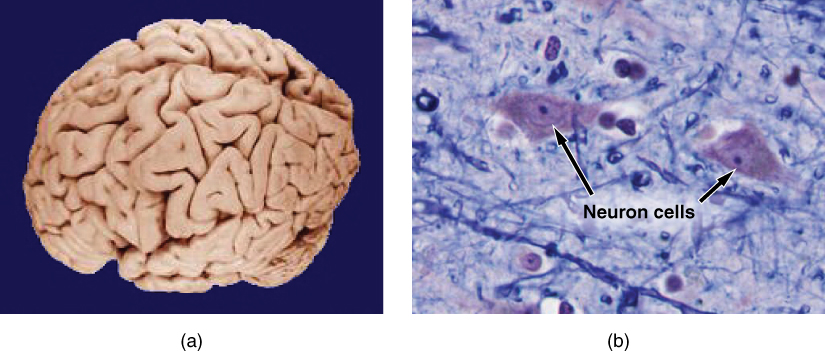 Photo A shows an entire human brain which has a lumpy and deeply striated appearance. Photo B is a micrograph of neural tissue. It contains two roughly diamond-shaped cells with dark nuclei. The cells are embedded in a light colored tissue containing smaller cells and fiber strands.
