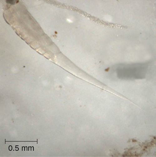 A micrograph of a tapered oval cell of approximately 30 mm in length.