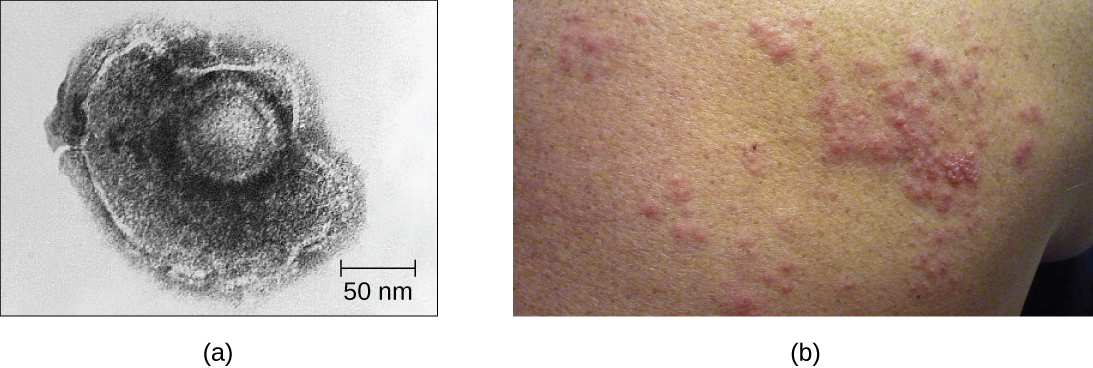 Figure a is an electron micrograph that shows a a shpere within a larger blob-shaped structure. Figure b shows raised red dots on a person's back.