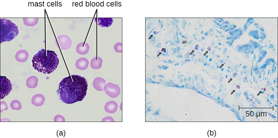 a) Mast cells in blood. Mast cells are large purple cells, red blood cells are small pink cells with a clear center. b) mast cell outside of blood.