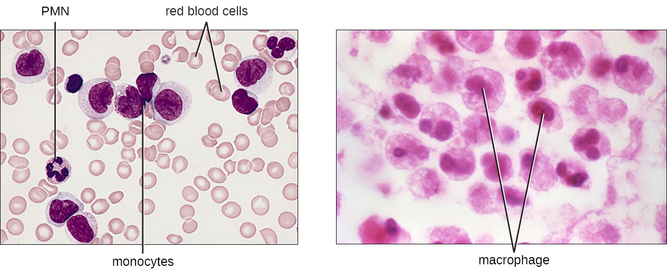 Monocytes are large cells with a large purple nucleus. There is a cluster of them in a field of smaller red blood cells. A PMN is also visible with a dark, multi-lobed nucleus. Macrophages are large cells with a defined nucleus.