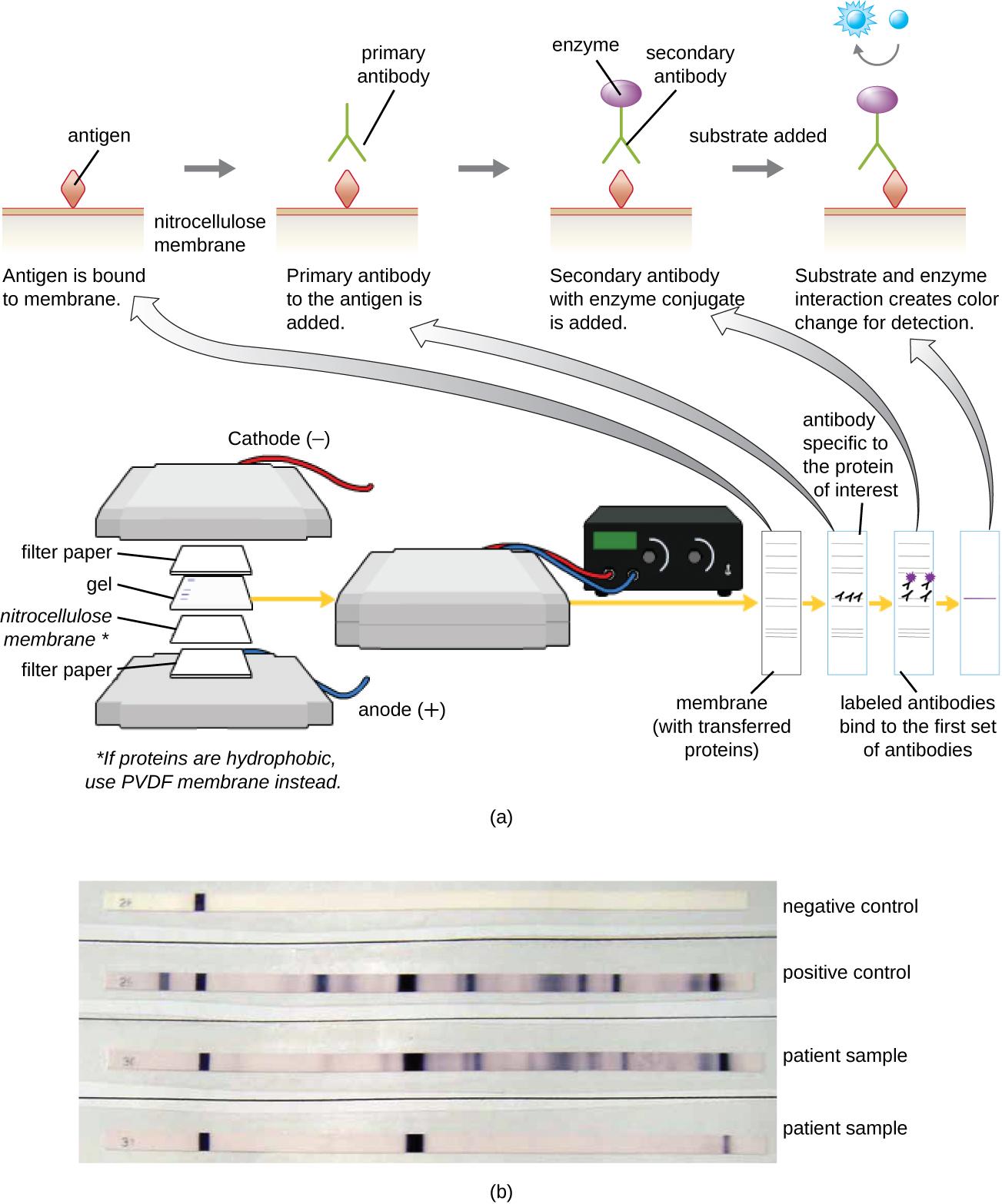 Detecting Antigen Antibody Complexes