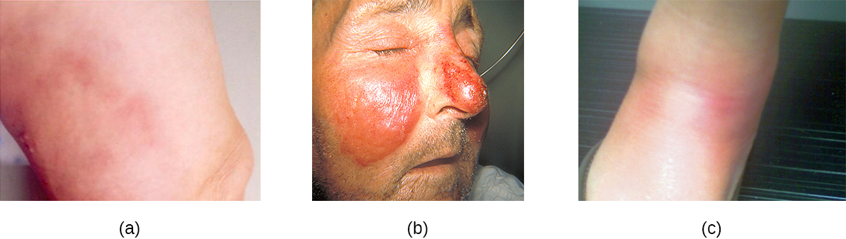 a) a red rash. B) swollen, red regions on the cheeks and nose. C) red lumps on the skin.